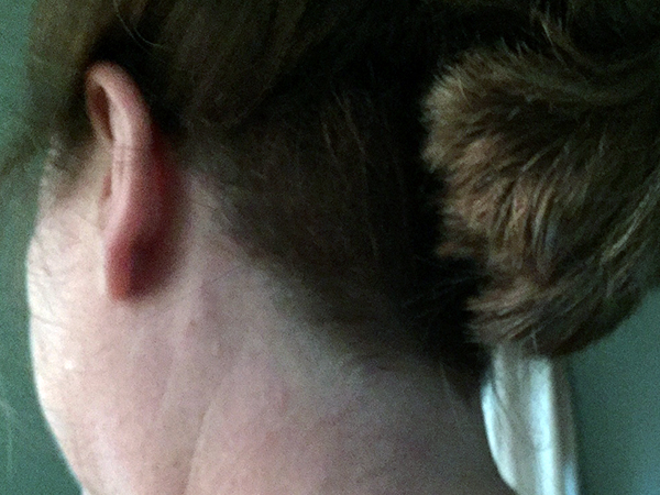 Back of Laurie's head with high ponytail and clipped area directly underneath